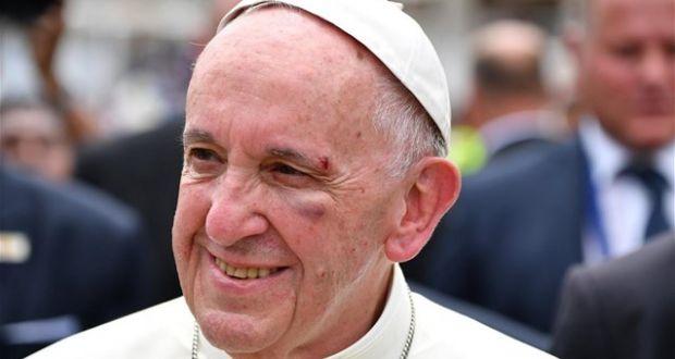 Ο Πάπας «τελείωσε» καρδινάλιο για κακοποίηση ανηλίκων