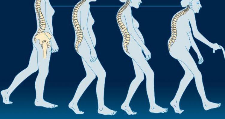 Αγρίνιο: «Σύγχρονες Αντιλήψεις για τη διάγνωση και την αντιμετώπιση της οστεοπόρωσης»