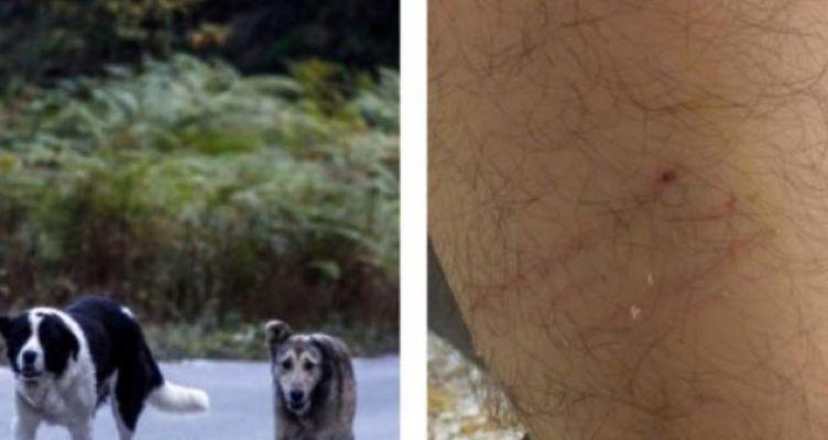 Αδέσποτος σκύλος δάγκωσε στο πόδι φοιτητή του Πανεπιστημίου Πατρών