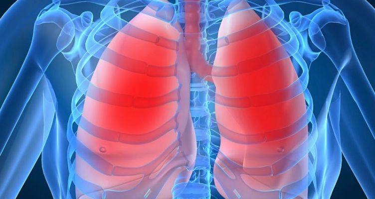 Eurostat: Η πνευμονία ήταν υπεύθυνη για το 3% περίπου όλων των θανάτων το 2016