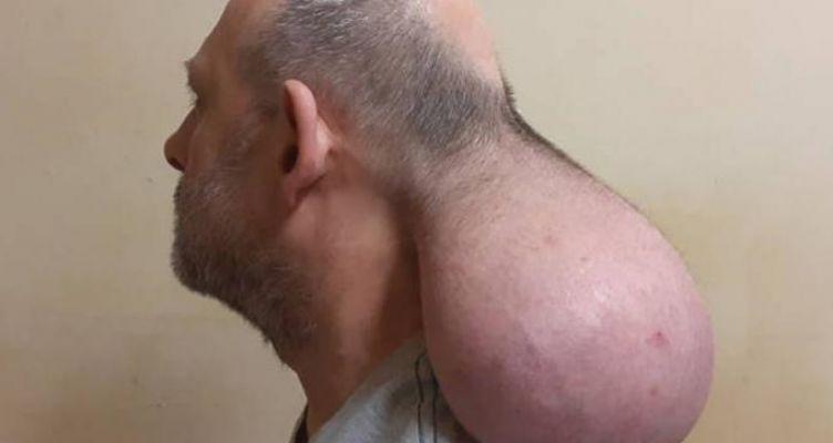 Κρατούμενος σε ελληνικές φυλακές έχει όγκο που μοιάζει με… δεύτερο κεφάλι (Βίντεο)