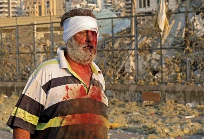 Βηρυτό: Εκατοντάδες νεκροί και δεκάδες τραυματίες από τις τρομακτικές εκρήξεις