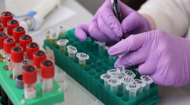 Κορωνοϊός: Σοβαρή ανεπιθύμητη αντίδραση ασθενή σε εμβόλιο