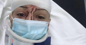 Τροχαίο ατύχημα για την Αγρινιώτισσα δημοσιογράφο Ξένια Γώγου – Συγκλονίζει…
