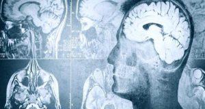 Ατμοσφαιρική ρύπανση: Τι σχέση έχει με τα εγκεφαλικά