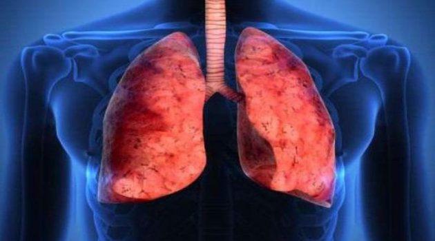 Πνευμονία: Ποια είναι τα συμπτώματα και οι κίνδυνοι