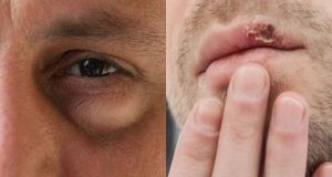 Ανεπάρκεια βιταμινών: 7 σημάδια της έλλειψης που φαίνονται στο πρόσωπό…
