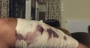Τραυματισμός συμπολίτη μας από επίθεση σκύλου, στον Αγ. Γεώργιο Καλυβίων