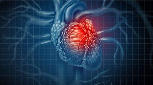 Ανακοπή καρδιάς: Το προειδοποιητικό σημάδι – Καρδιακή ισχαιμία και στηθάγχη