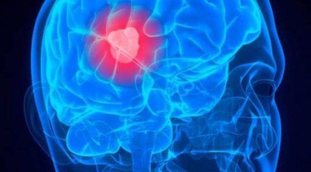 Προειδοποιητικά σημάδια ενός όγκου στον εγκέφαλο
