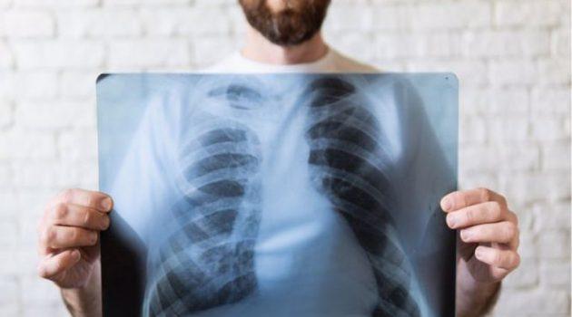 Καρκίνος του πνεύμονα: Αυτά είναι τα συμπτώματα