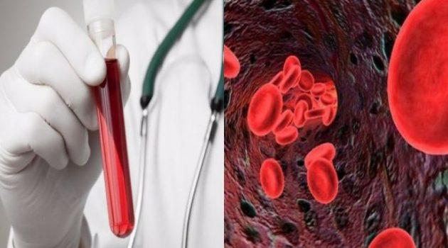 Αιματοκρίτης: Οι φυσιολογικές τιμές ανά ηλικία -Τι πρέπει να τρώτε για να τον αυξήσετε