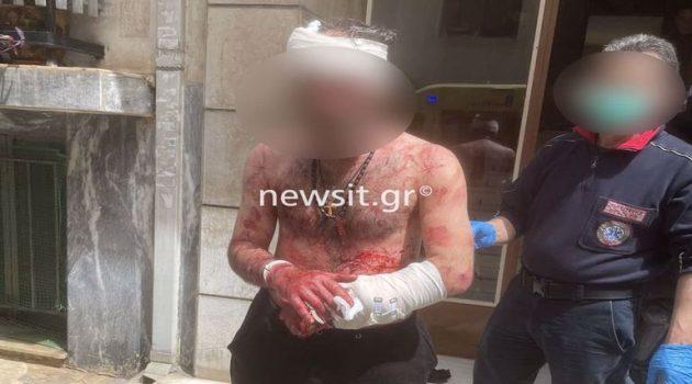 Μαχαίρωσε τον αδερφό του, αυτοτραυματίστηκε και επιτέθηκε σε αστυνομικό