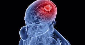 Εμβόλια mRNA: Ελπίδες για λύση και στους επιθετικούς όγκους εγκεφάλου