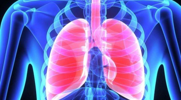 Κατούνα: Όλα όσα πρέπει να ξέρετε για την πνευμονική εμβολή που σκότωσε την 30χρονη Μαρία