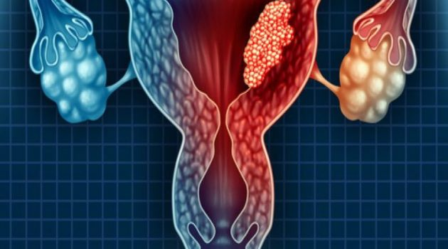 Καρκίνος του ενδομητρίου: Ανήκεις σε ομάδα υψηλού κινδύνου;