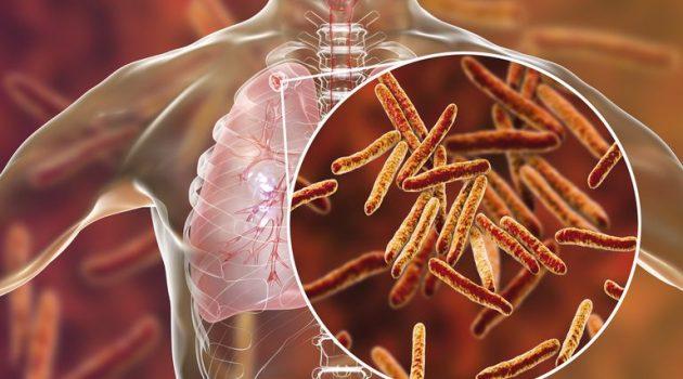 Με πρωτοβουλία Χ. Μπονάνου σύσκεψη για την αντιμετώπιση κρούσματος φυματίωσης