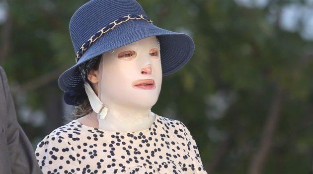 Ο Γιατρός της Ιωάννας για την επίθεση με βιτριόλι: «Θα μπορούσε να χάσει τη ζωή της»